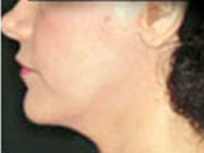 Ciruga plstica - lifting facial: informacin, fotos y